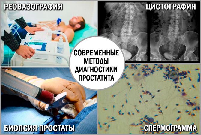 Диагностика простатита: методы исследования