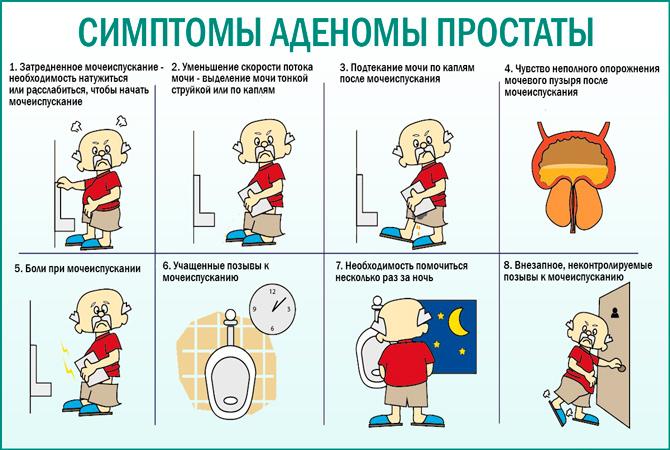 Аденома простаты. Симптомы