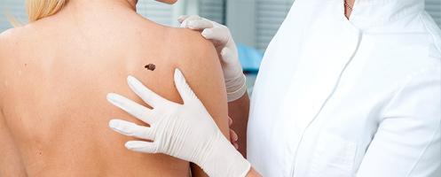 Чем угрожает ВПЧ 6 типа женщинам