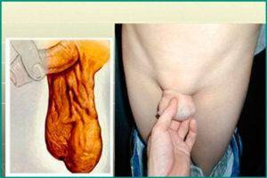Варикоцеле яичка: диагностика