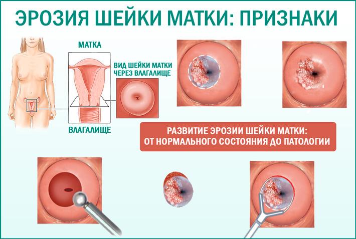 Эрозия шейки матки у женщины
