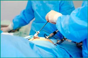 Как делают лапорскопическую операцию при варикоцеле?