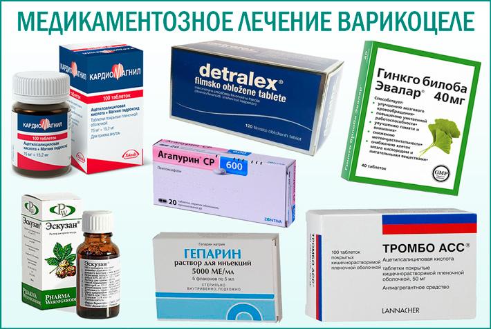 Варикоцеле: медикаментозное лечение