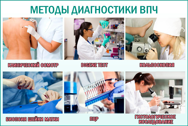 Методы диагностики папилломавирусной инфекции (ВПЧ)