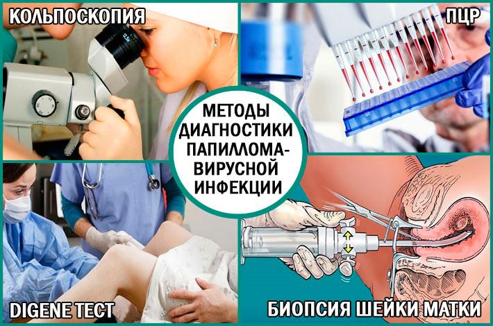 Диагностика папилломавирусной инфекции: методы
