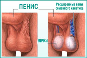 Оперативное лечение варикоцеле (операция Мармара)