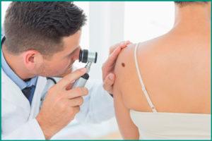 Вирус папилломы человека: осмотр у врача