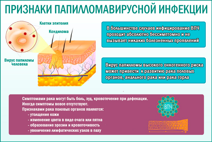 Папилломавирусная инфекция: симптомы