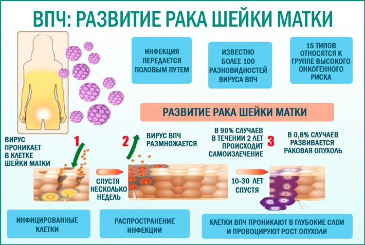 прививки от впч после 30 лет