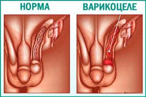 Что такое варикоцеле?
