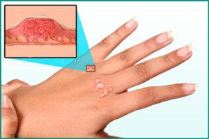 Папилломавирус человека (ВПЧ-инфекция)