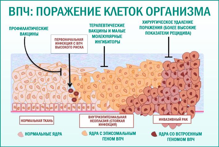 Чем опасен вирус папилломы человека?
