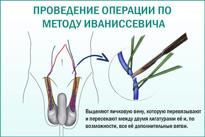 Устранение варикоцеле путем операции