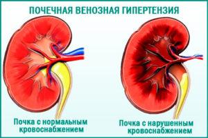 Венозная гипертензия в почке