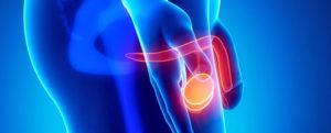 Варикоцеле у мужчин: последствия при отсутствии лечения