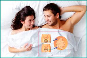 Вирус папилломы человека: профилактика
