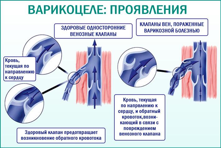 Варикоцеле: проявления