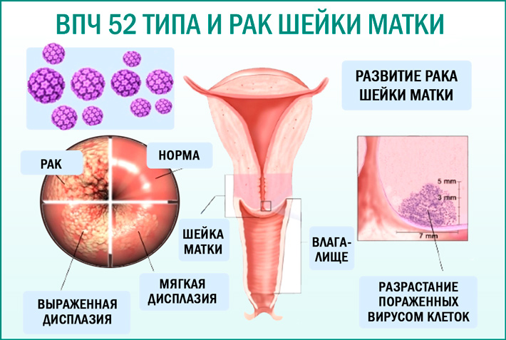 ВПЧ и рак шейки матки у женщины