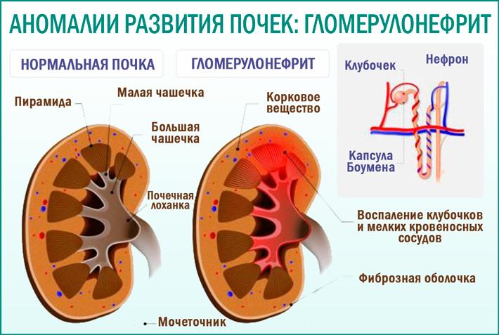 Болезни почек: гломерулонефрит