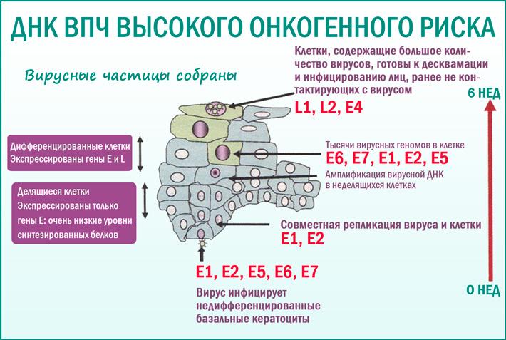 Вирус папилломы человека высокого канцерогенного риска