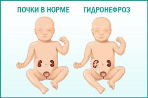 Гидронефроз у плода при беременности: подходы к терапии