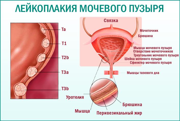 Лейкоплакия шейки мочевого пузыря