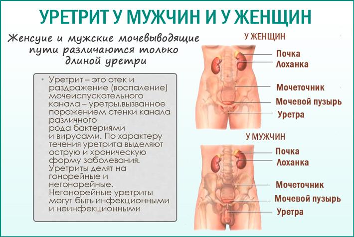 Симптомы уретрита у мужчин и женщин
