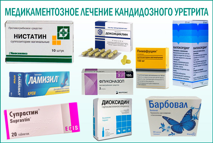 Кандидозный уретрит: медикаментозное лечение