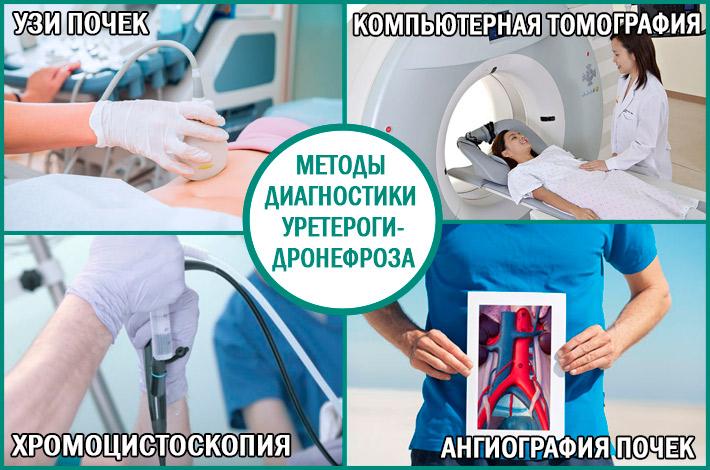 Уретерогидронефроз: методы диагностики заболевания