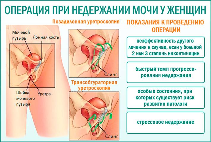 Оперативное лечение недержания мочи у женщин
