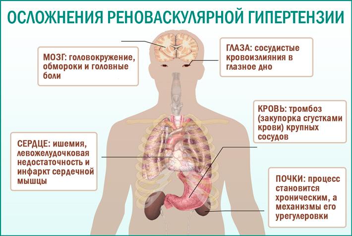 Вазоренальная (реноваскулярная) артериальная гипертензия