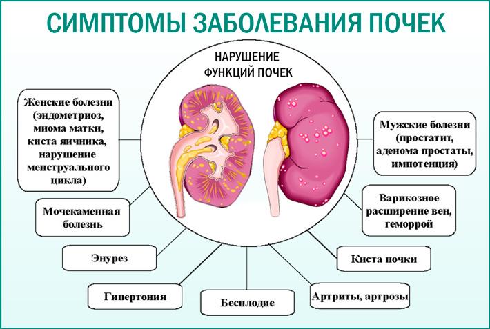 Первые симптомы болезней почек