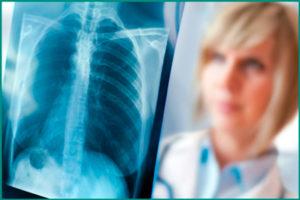 Туберкулез легких: причины