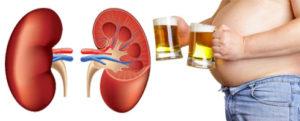 Алкоголь и камни в почках