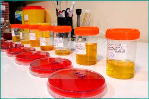 Общеклинические анализы крови, мочи
