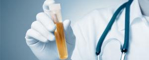 Анализы при пиелонефрите