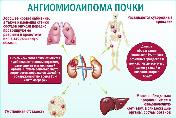 Ангиомиолипома почки (АМЛ): описание