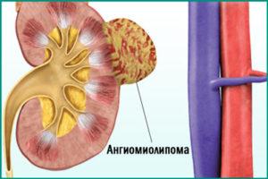 Ангиомиолипома почки: лечение