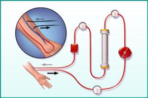 Артериовенозная фистула для гемодиализа