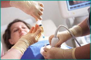Биопсия почки при наличии кисты