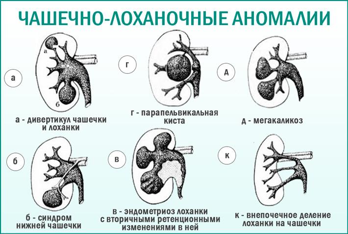 Аномалии развития чашечно - лоханочной системы