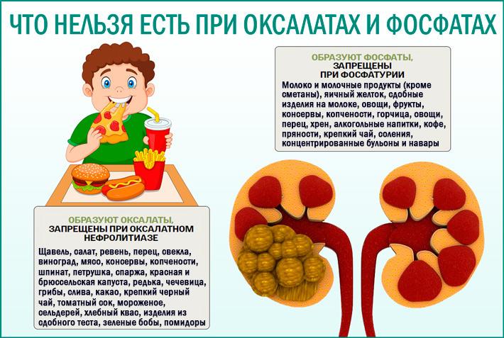 Диета при мочекаменной болезни
