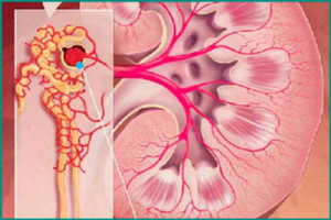 Хронический диффузный гломерулонефрит