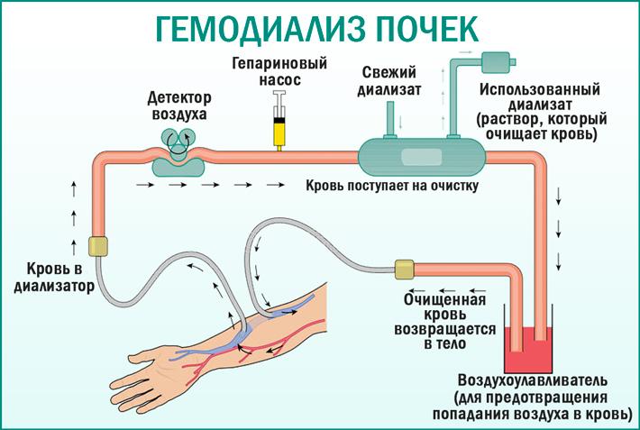 Гемодиализ: показания