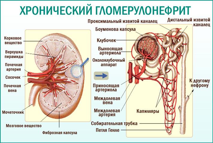 Хронический гломерулонефрит: причины