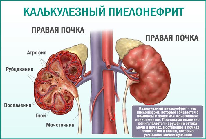 Калькулезный пиелонефрит (хронический, острый): что это такое