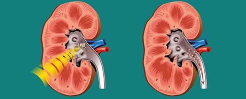 Медикаментозное лечение мочекаменной болезни