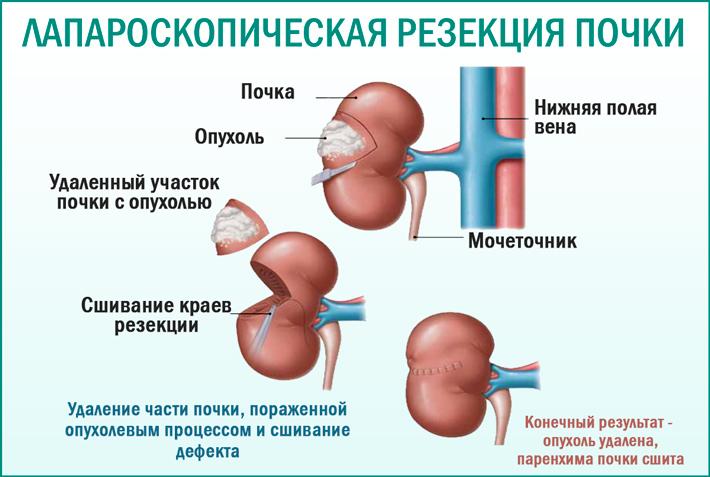 Лапароскопическая резекция почки при опухолевом пораженииях