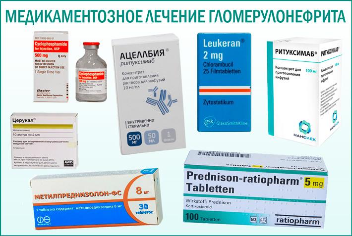 Гломерулонефрит: медикаментозная терапия