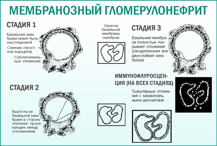 Гломерулонефрит мембранозный